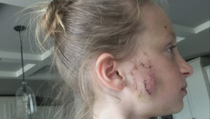 Dog that attacked little girl is a repeat offender