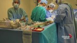 Kidney transplant surgery livestreamed to raise awareness about kidney disease, organ donation