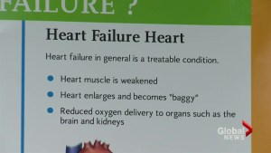 Heart failure a serious risk in Canada according to Heart and Stroke Foundation