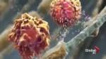 UBC scientist identifies gene mutation in MS patients
