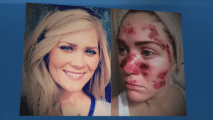 Woman shares shocking skin cancer selfie to highlight dangers of tanning