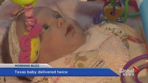 Baby born twice, doing well