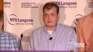 Severely burned firefighter doing 'great' following most recent face transplant operation