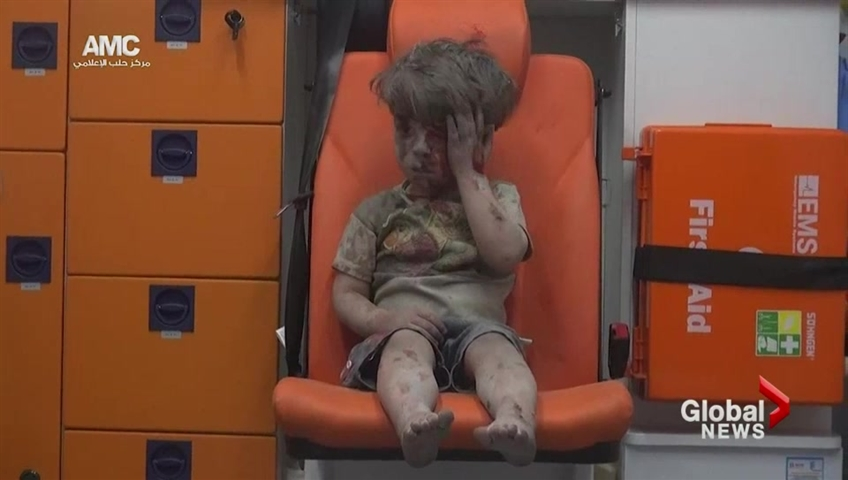 Syrian boy in the ambulance: Reminder of war's horror