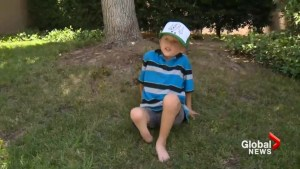 Boy has prosthetic leg stolen while playing at beach