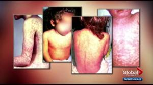 Case of measles at Calgary Shoppers Drug Mart prompts warning