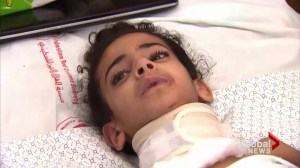 Toronto doctor calls on Canada to help injured children of Gaza