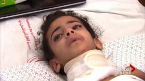 Toronto doctor calls on Canada to help injured children of Gaza