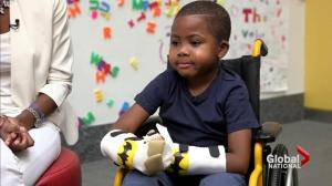 Boy, 8, becomes youngest recipient of double hand transplant