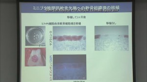 RAW: Kyoto University researchers create cartilage from human stem cells