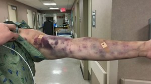 Unknown bug bite covers Arizona man's arm in bruises, leaves him in 'excruciating pain'