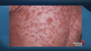 Report of measles in Hamilton has GTA health officials on high alert