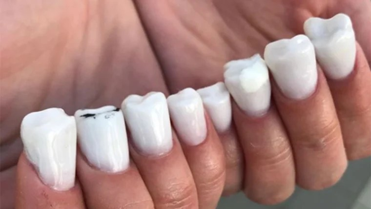 Molar nails  are the creepy new nail trend taking over Instagram Molar nails