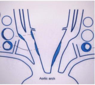 Carotid artery echo3