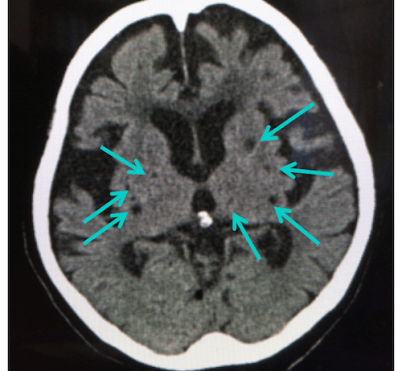 old-infarction-ct-scan