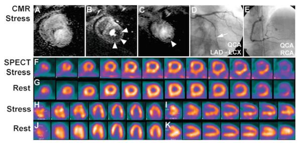 perfusion MRI