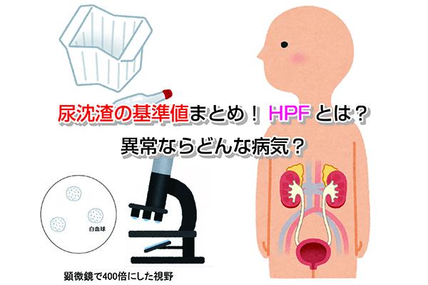 HPF Eye-catching image