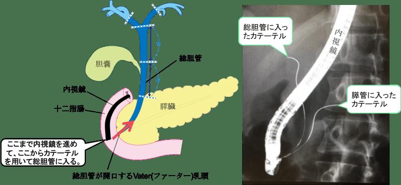 endoscopic-retrograde-cholangiopancreatography