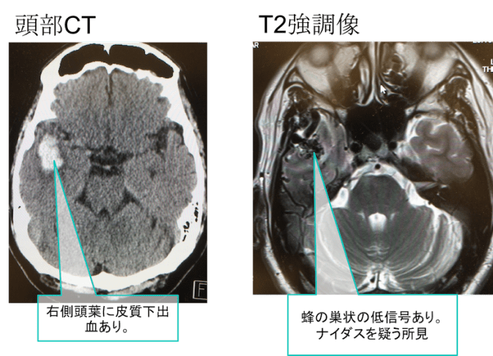 cerebral arteriovenousmalformation mri findings2