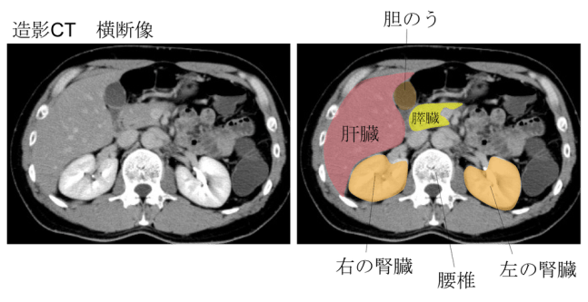 place of kidney ct findings