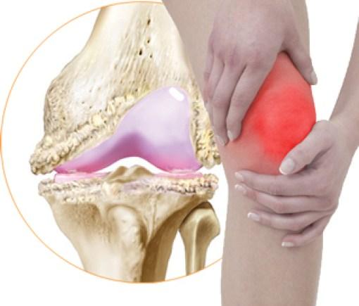 коленный сустав, артроз,