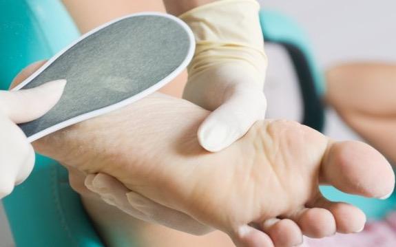 Глубокая трещина на пятке как лечить при диабете