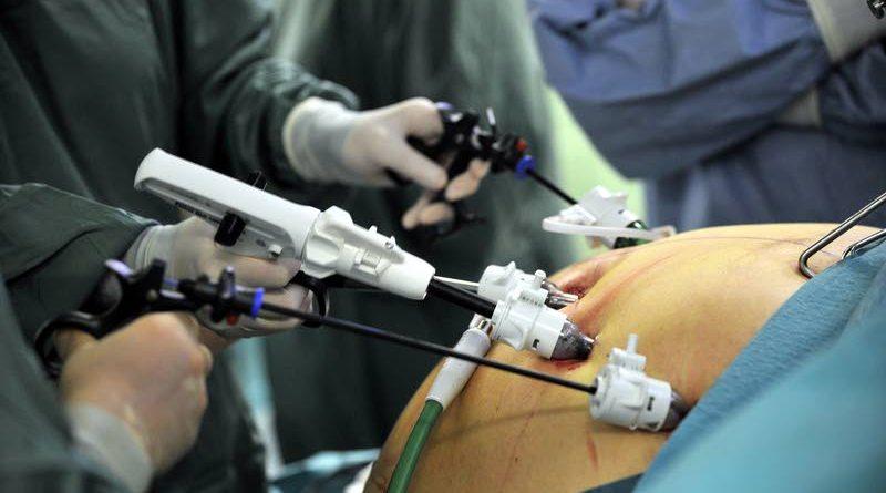 cirugia-bariatrica-laparoscopica