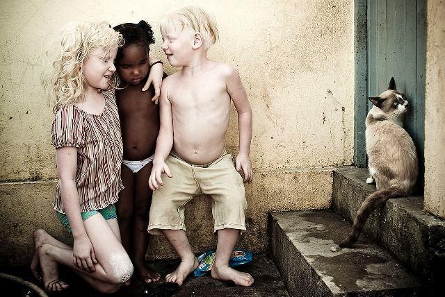 alexandre severo_albinos