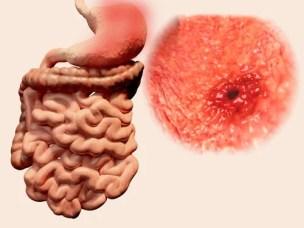 Resultado de imagen de gases intestinales