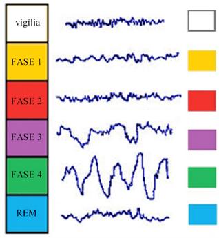 Fases do sono e respectivas ondas cerebrais. As fases 3 e 4 são de sono profundo. A fase REM é quando acontecem os sonhos