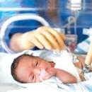 Trẻ sinh non, nhẹ cân có nguy cơ chấn thương não.