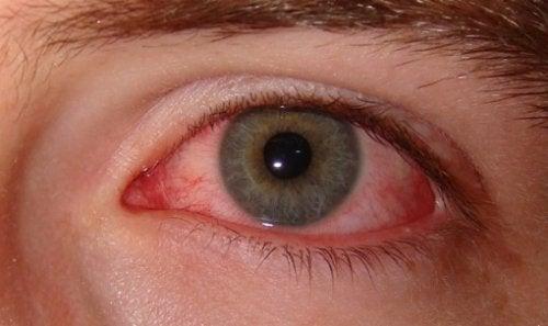 Μια αγχώδης διαταραχή προκαλεί πόνο στα μάτια