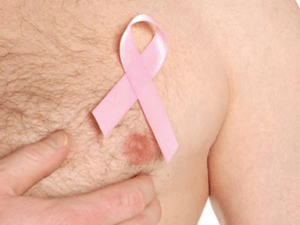 breast-cancer-men