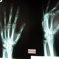 Broken Bones And Losing Face:  The Breaking Of My Hand In A Bangkok Muay Thai Gym