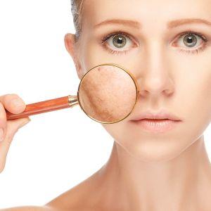 tratamiento natural piel depurar depuración toxinas radicales libres