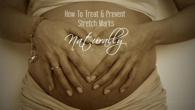 How To Naturally Treat & Prevent Stretch Marks