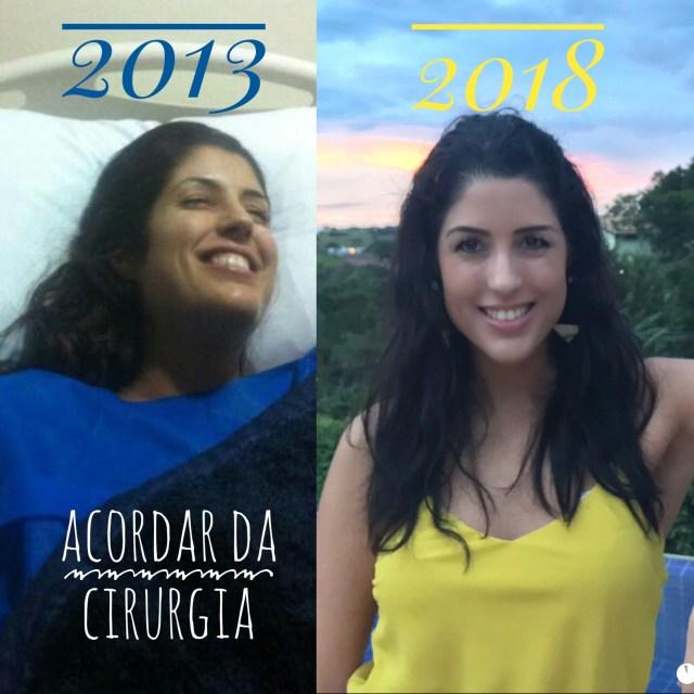 5 anos sem cancer