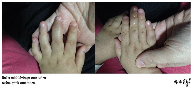 reuma-handen