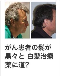 【新薬発見?!】白髪が生えなくなる薬が見つかった?
