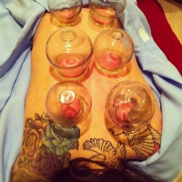 Edmonton Cupping and Acupuncture
