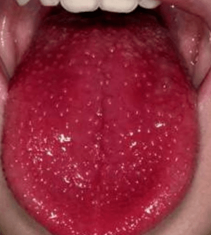 red-spots-on-tongue-pictures
