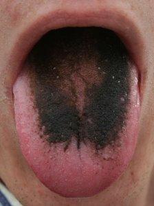 tongue-3