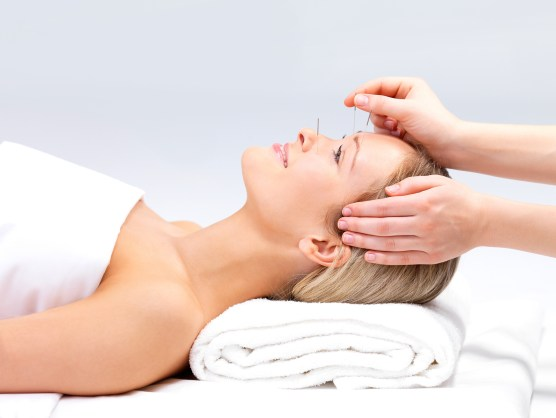 bigstock_acupuncture_on_a_beautiful_wom_6228540