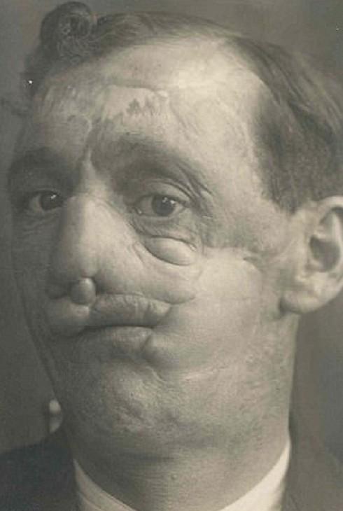 Солдаты Первой мировой - пациенты первых пластических хирургов восстановление лица, врачи, история, медицина, первая мировая война, пластическая хирургия, пластические хирурги, хирурги