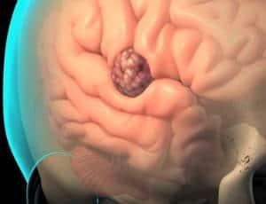 Resultado de imagen de tumor cerebral
