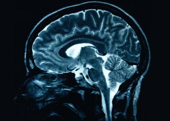 Resultado de imagen de estar consciente durante el coma