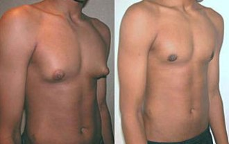 Como eliminar los senos masculinos o grasa en el pecho. Como Eliminar los senos de hombre