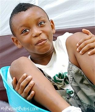 African American Children_Sunburn_MyBrownBaby.com