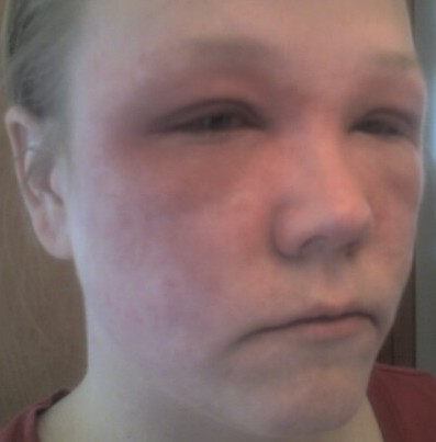 severe prednisone reaction