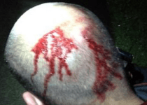 Injuries to back of Zimmerman's head ignored by racist blacks